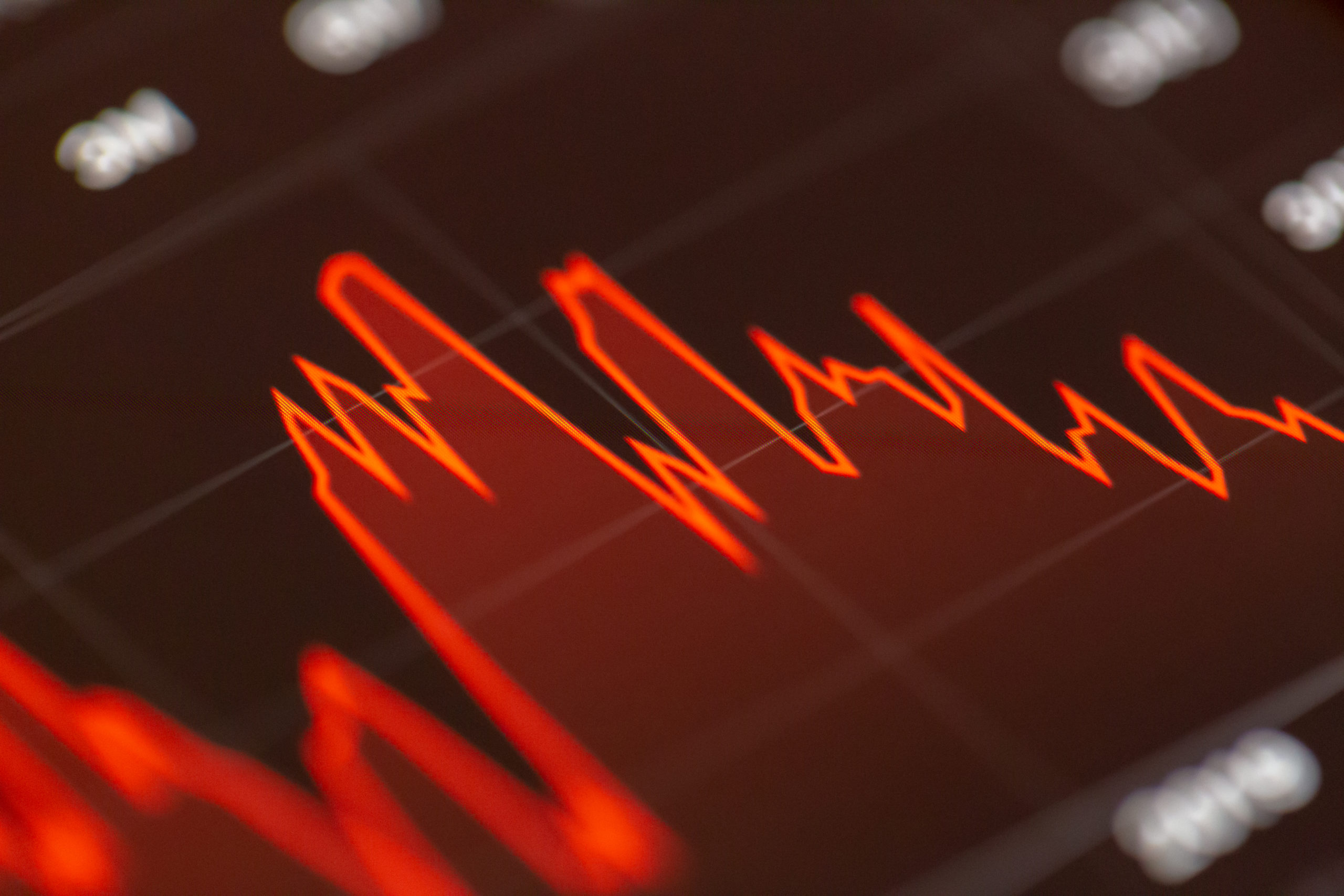 Bull Call strategy can help limit losses in volatile markets